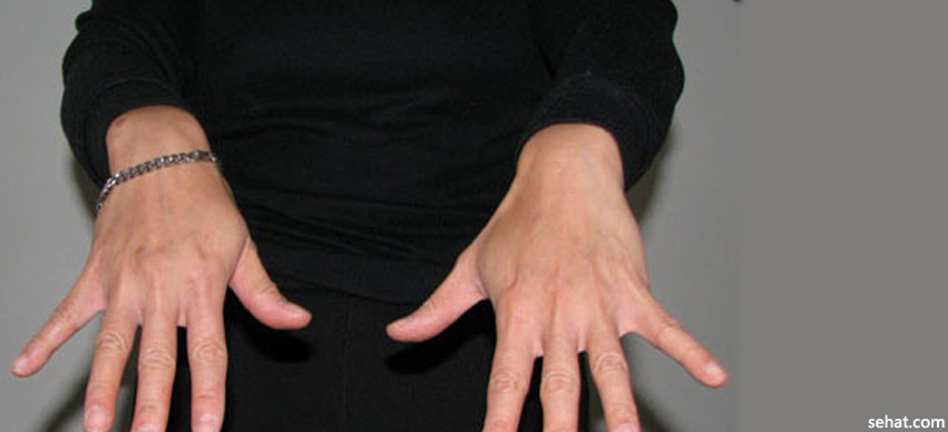 10 Tips to Improve Blood Circulation