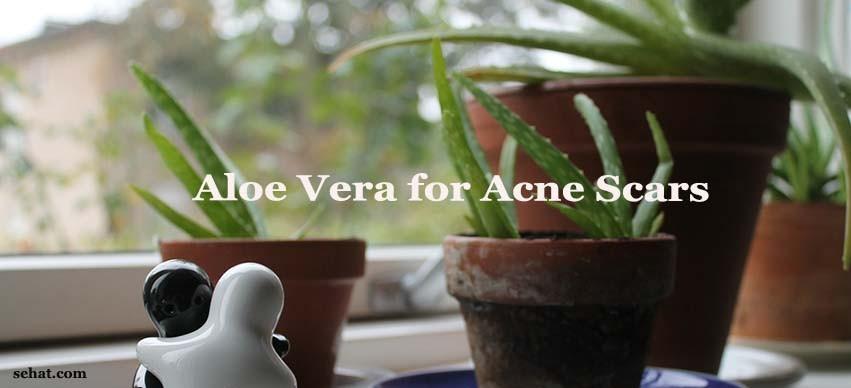 Aloe Vera and Acne Scars