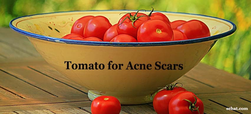 Tomatos for Acne Scars