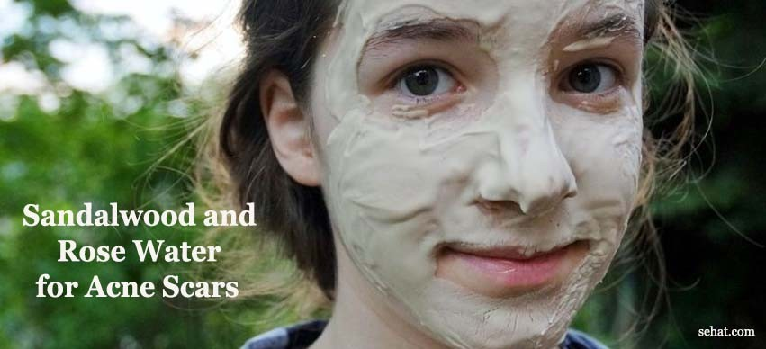 Sandalwood and Rose Water for Acne Scars