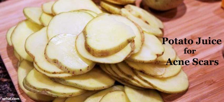 Potato Juice for Acne Scars