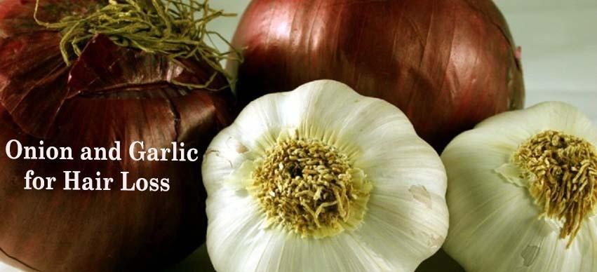 Onion and Garlic for Hair Loss