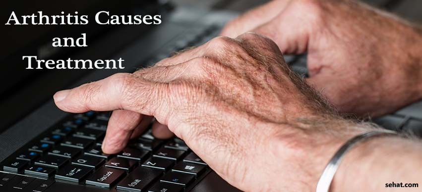 Arthritis causes and treatment