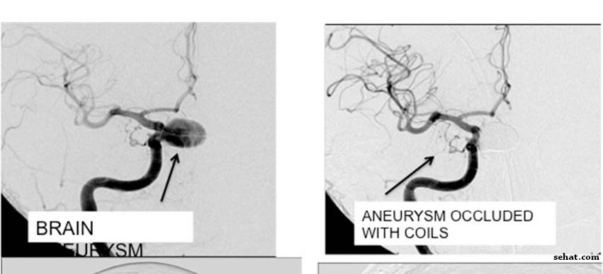 Aneurysm Occluded with coils