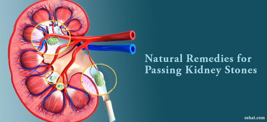 Natural Ways of Passing Kidney Stones Fast