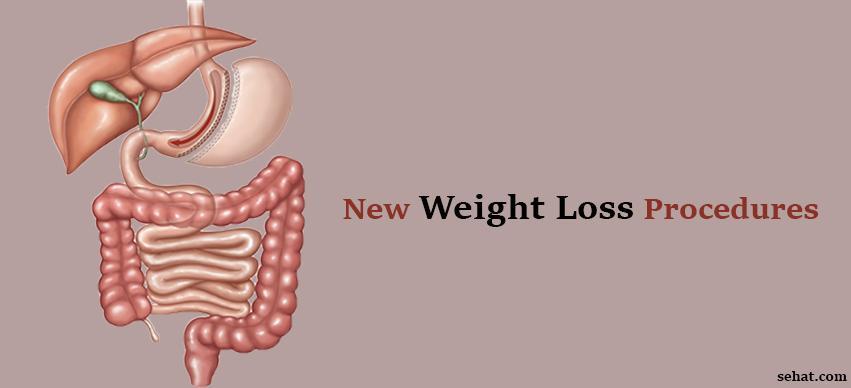New weight loss procedures