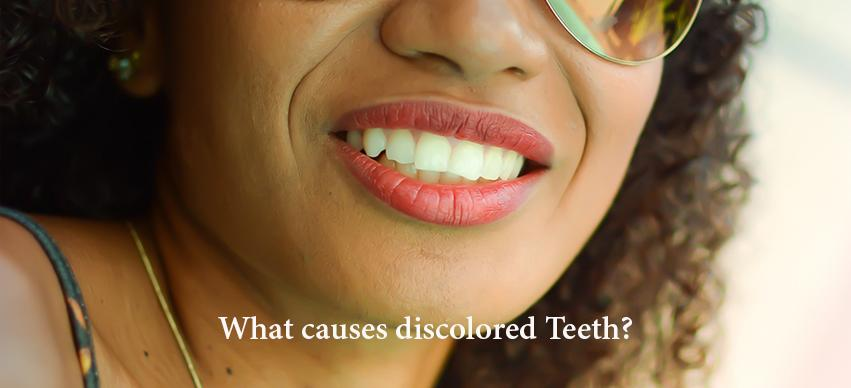 What causes discolored Teeth?