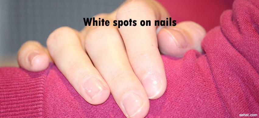white spots on nails;