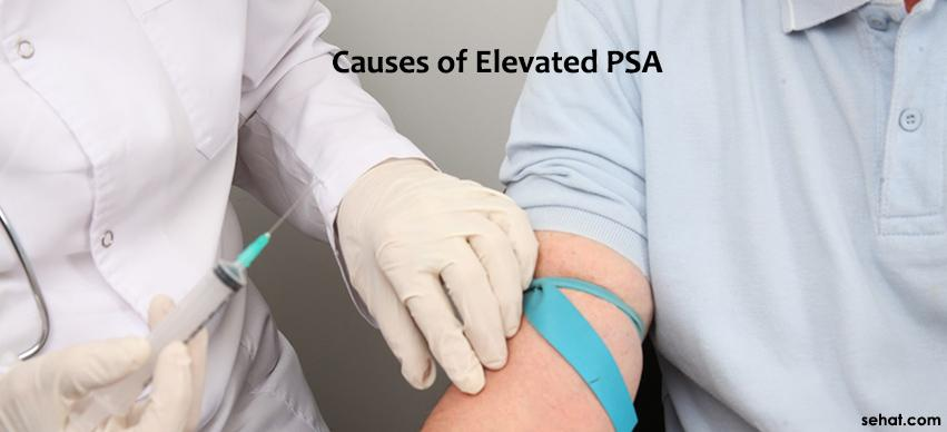 Causes of elevated PSA