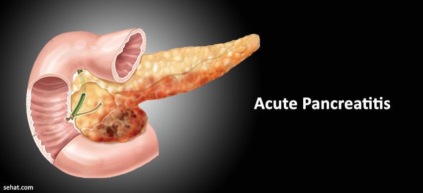 Acute Pancreatitis