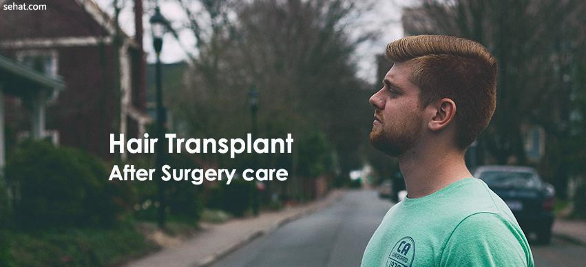 Hair Transplant After Surgery care