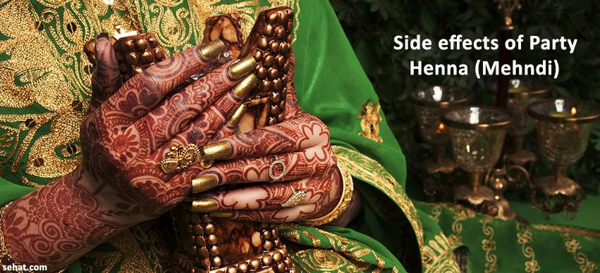 Side effects of Party Henna (Mehndi)