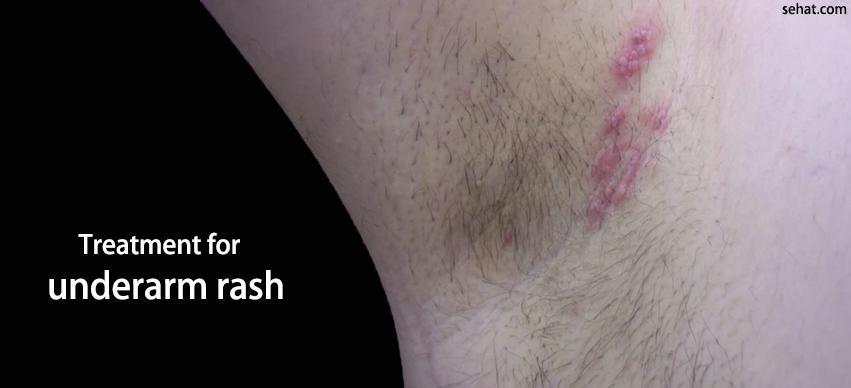 Treatment for underarm rash