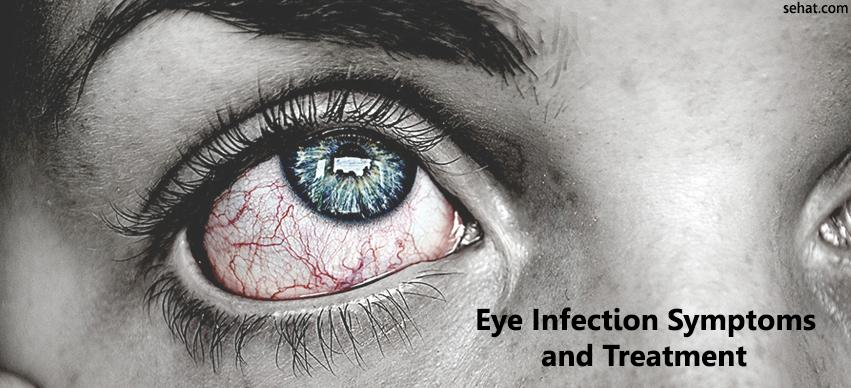 Eye Infections Symptoms and Treatment