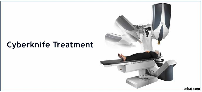 Cyberknife treatment