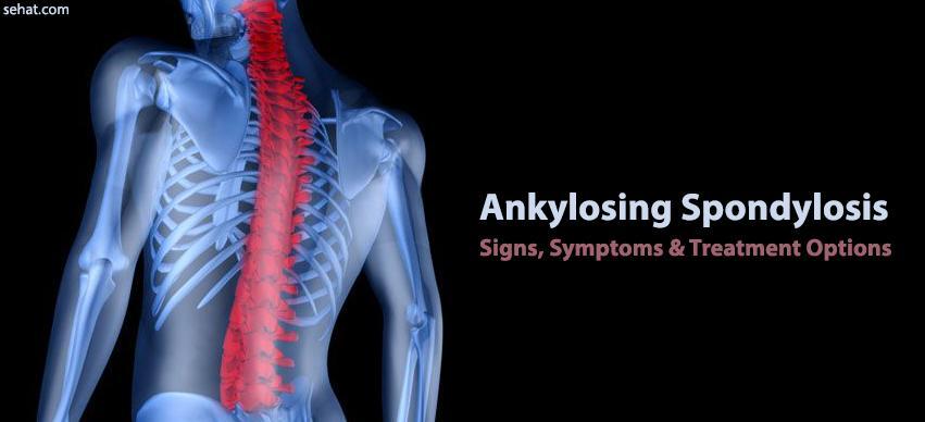 Ankylosing Spondylosis - Signs, Symptoms & Treatment Options