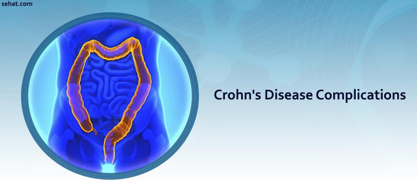 Crohn's Disease Complications