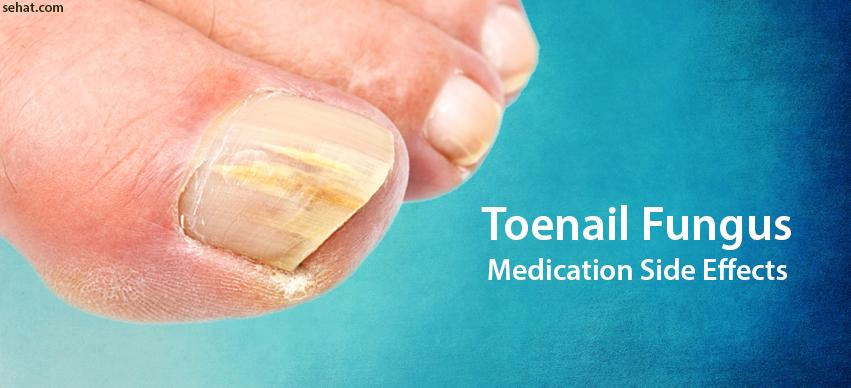 Side Effects of Toenail Fungus Oral Medication