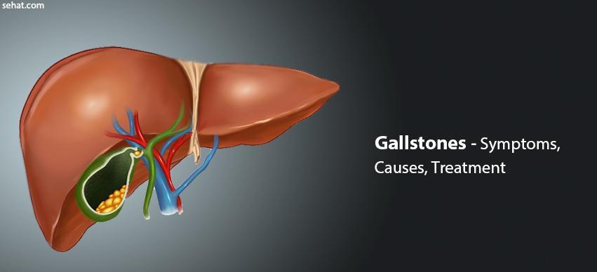 Gallstones Risk Factors, Symptoms, Causes, Treatment