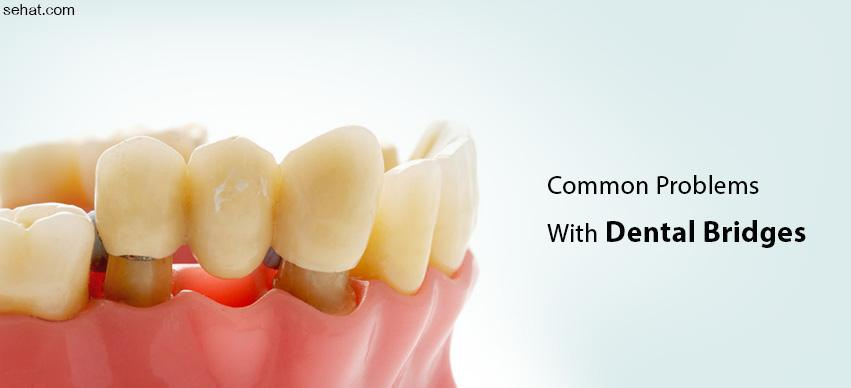 common problems with dental bridges