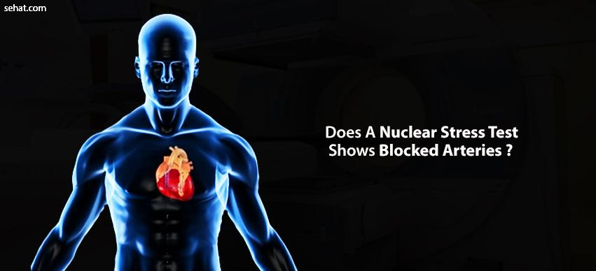 Does A Nuclear Stress Test Show Blocked Arteries