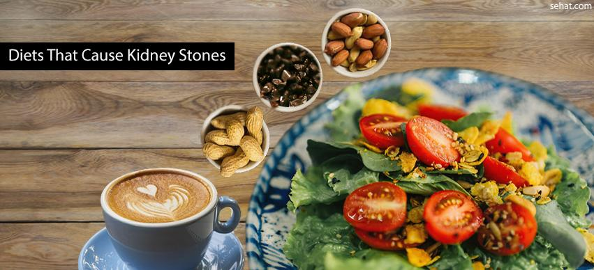 Diets that cause kidney stones