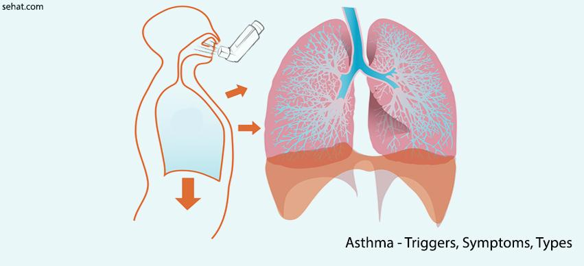 Asthma triggers list,symptoms,types