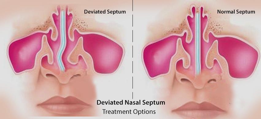 Deviated Nasal Septum Treatment Options Medications Surgery