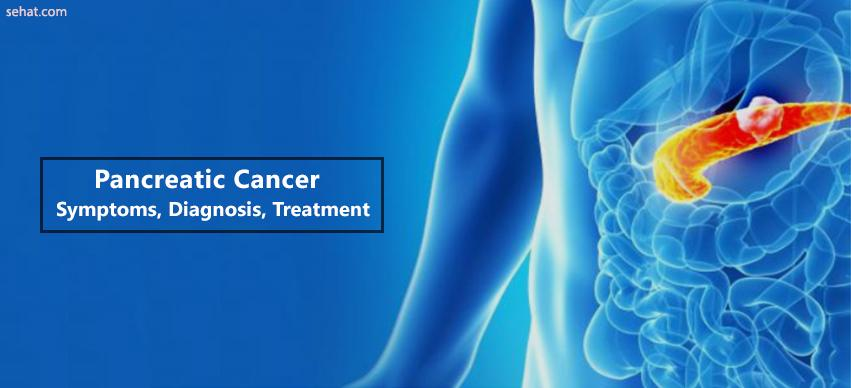 Pancreatice cancer-Symptoms,Diagnosis,Treatment