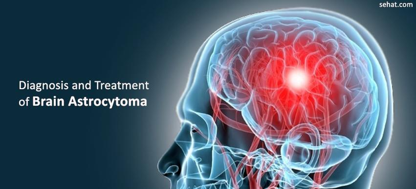 Diagnosis And Treatment Of Brain Astrocytoma in German Hospitals