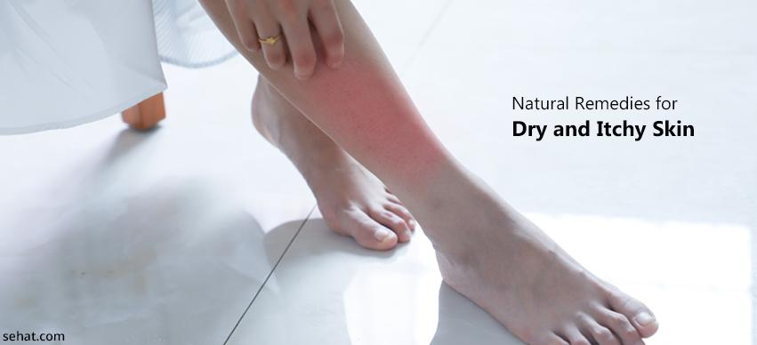 Natural Remedies For Dry And Itchy Skin