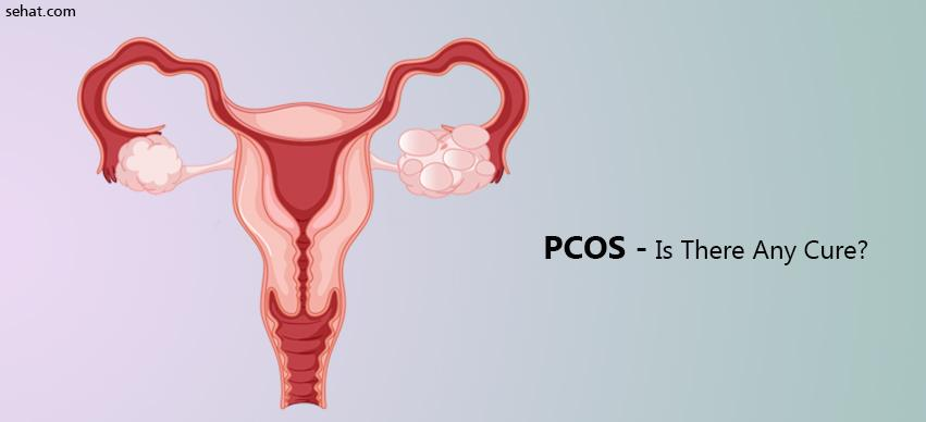 PCOS- Is There Any Cure