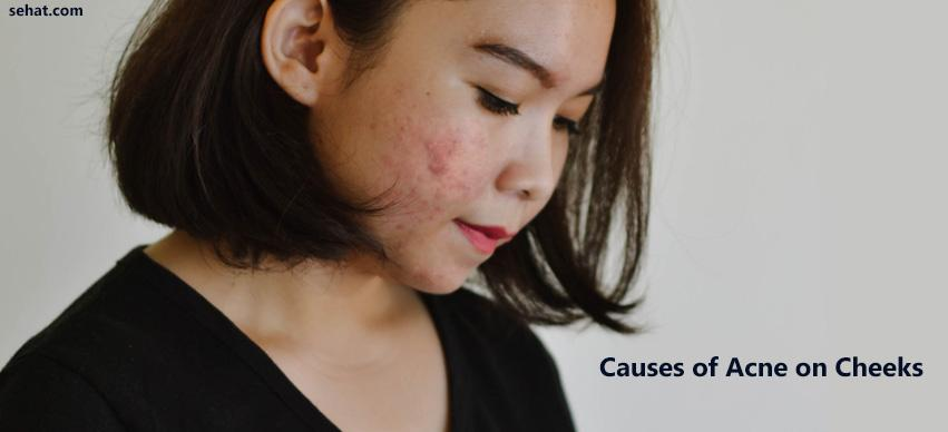 Causes Of Acne On Cheeks