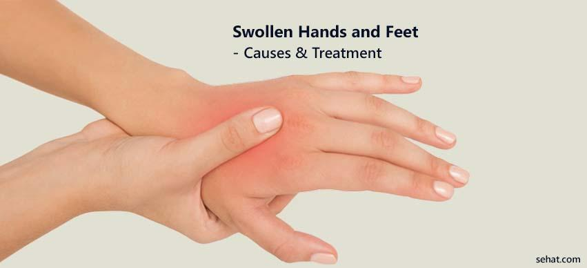 Swollen Hands And Feet - Causes And Treatment