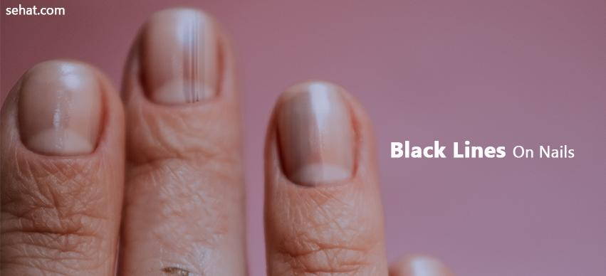 Black Lines On Nails