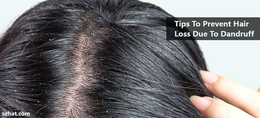 Tips To Prevent Hair Loss Due To Dandruff