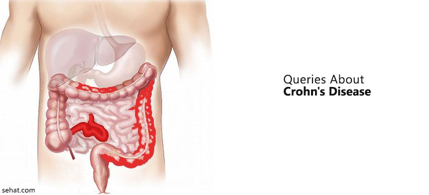 Questions To Ask Your Doctor About Chron's Disease