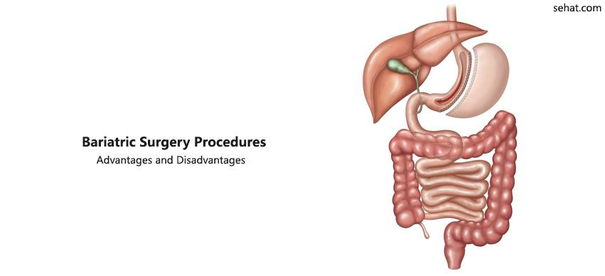 Different Types of Bariatric Surgery
