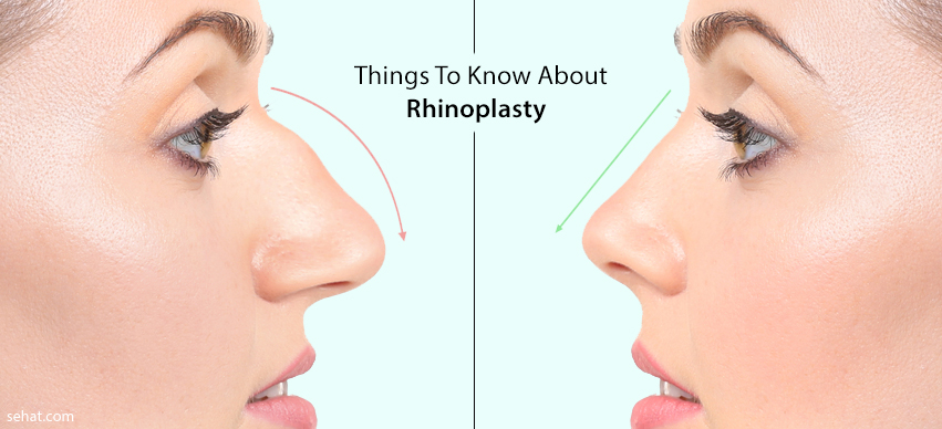 5 Things To Know About Rhinoplasty