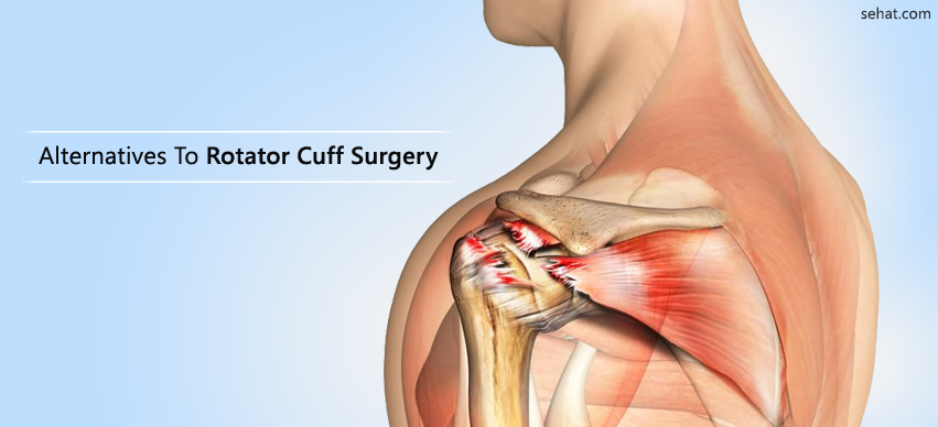 Alternatives To Rotator Cuff Surgery