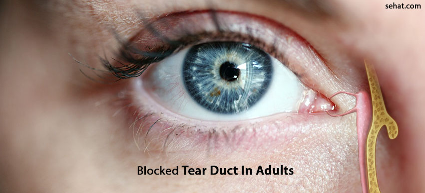 Blocked Tear Duct In Adults- Causes, Symptoms, And Risks