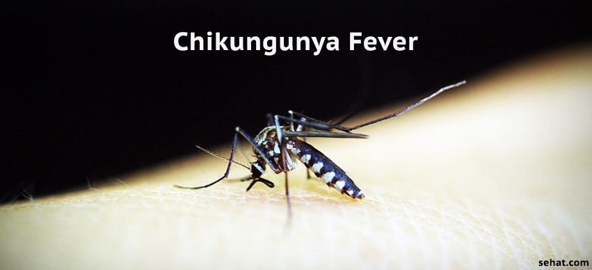 Chikungunya Fever - Symptoms, Diagnosis, & Treatment