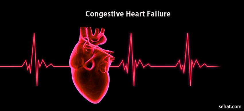 Congestive Heart Failure- Stages, Causes, And Treatment