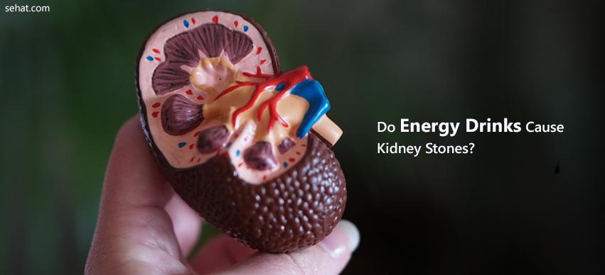 Do Energy Drinks Cause Kidney Stones