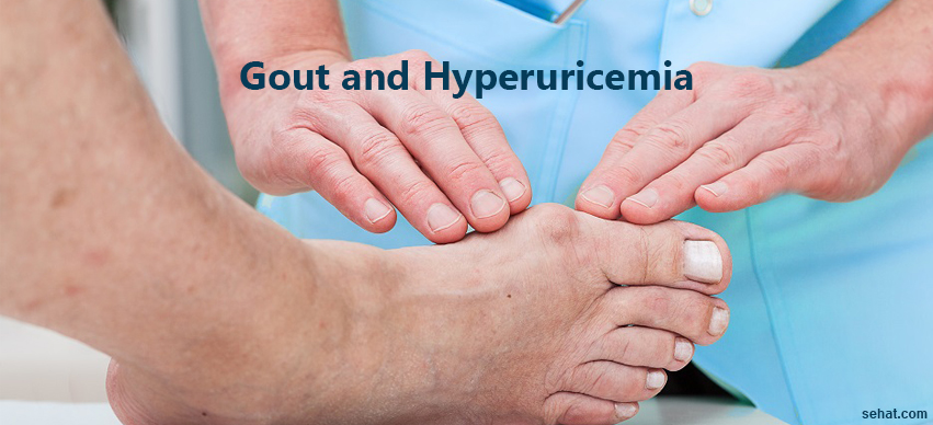 How Hyperuricemia (High Uric Acid Levels) Affect Gout?