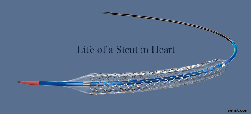 How Long Does a Heart Stent Last?
