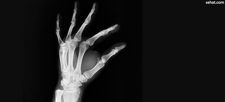 Improving Bone Health to Reduce the Risk of Fracture