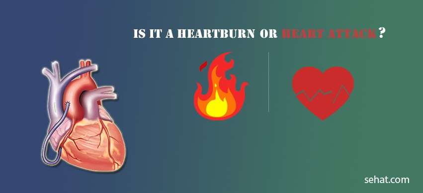 Is it a Heartburn or a Heart Attack?