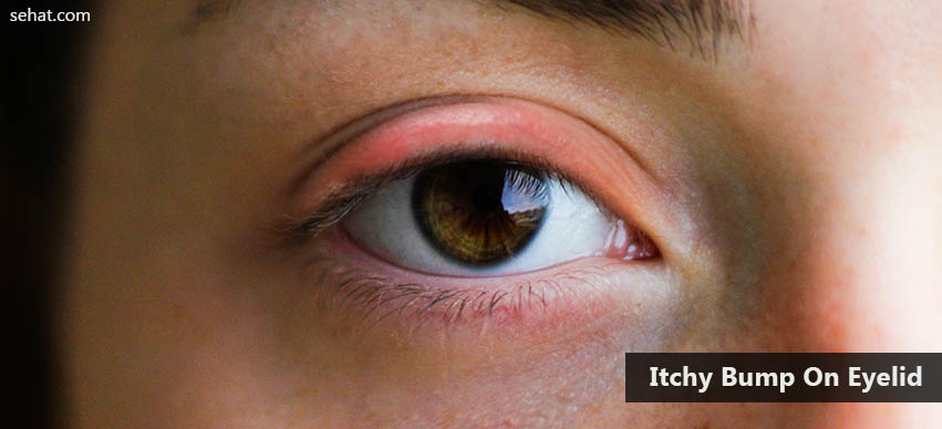 Know The Causes And Prevention Tips For Itchy Bump On Eyelid