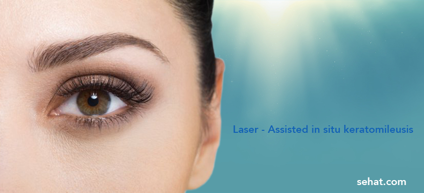 Laser - Assisted in Situ Keratomileusis